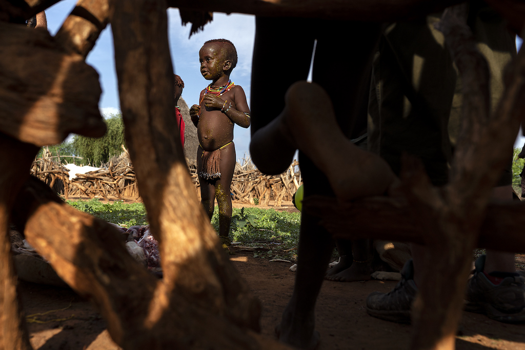 lower omo valley, ethiopia, tribes, reporatage, hamer child, goat stomache, malaria